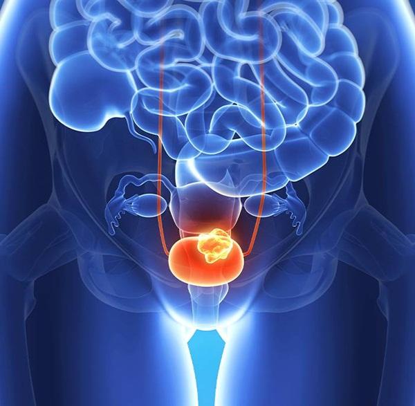Ung thư bàng quang là gì và được chẩn đoán như thế nào