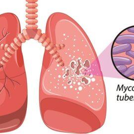 Bệnh lao phổi: Nguyên nhân, triệu chứng và cách điều trị